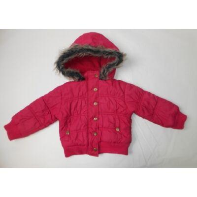 92-es pink szőrmés kapucnis kabát - Topolino